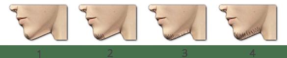 Testul pentru depistarea creșterii excesive a părului, 1
