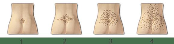 Testul pentru depistarea creșterii excesive a părului, 4